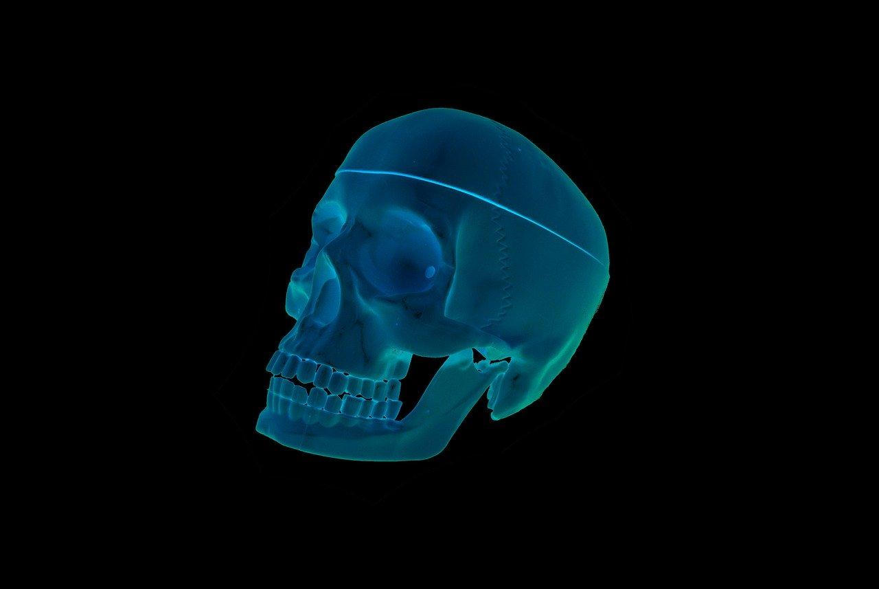 skull, roentgen, the head of the